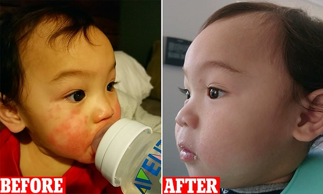Mother clears up toddler son's eczema with $10 'miracle' cream