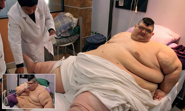 The world's former fattest man at 93st has life-saving surgery