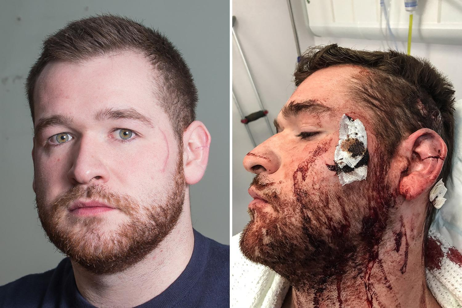 'Cowardly' roofer stabbed lawyer in face with broken glass in unprovoked bar attack leaving him with horrific injuries