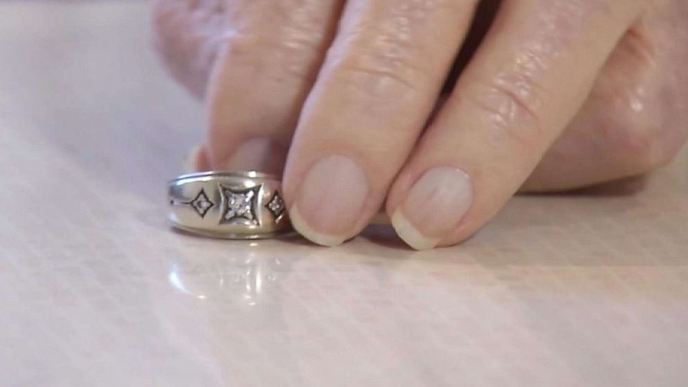 Man recovers wedding ring lost 45 years ago…from the most unlikely of locations