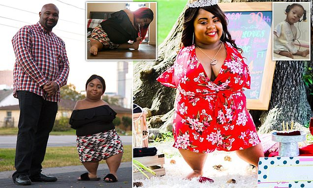 Woman, 30, born with no arms and knees reveals happiness over love