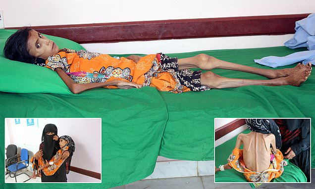 Yemeni girl, 12, weighing just 22lbs, one of millions starving