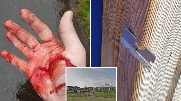 Dad's chilling warning after thugs hide razor blade in child's swing leaving his hand sliced open and covered in blood