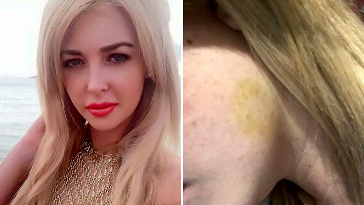 Rich Kids Go Skint star Jodie Weston bitten on her FACE by pervert weirdo who groped her bum and legs