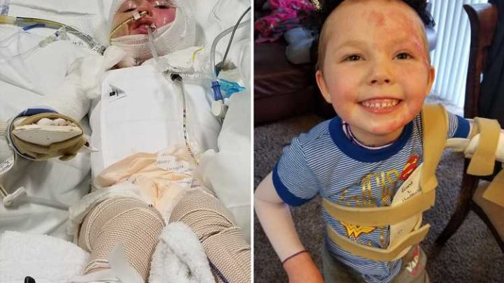Mum's candle warning as daughter, 6, has fingers and toes amputated after sofa caught fire – The Sun