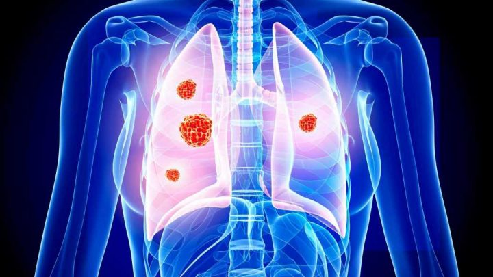 8 red flag signs of lung cancer you need to know – as thousands of NON-smokers die each year