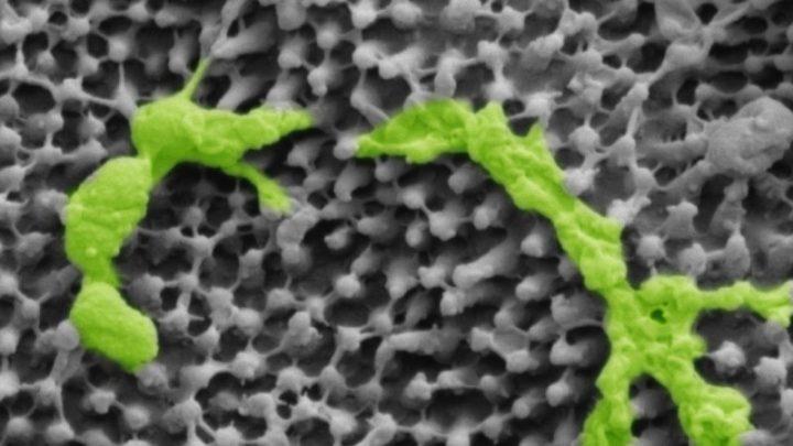Progress on vaccine for persistent throat bug