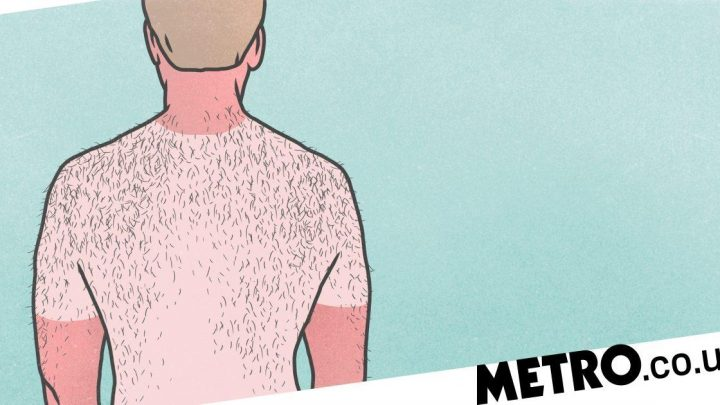 We know it's tough, but you really should resist peeling your skin after sunburn