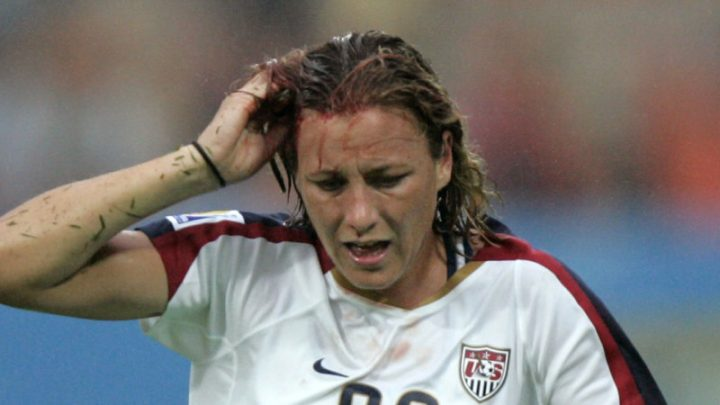 Shine is off as Women's World Cup misses mark with empty slogan
