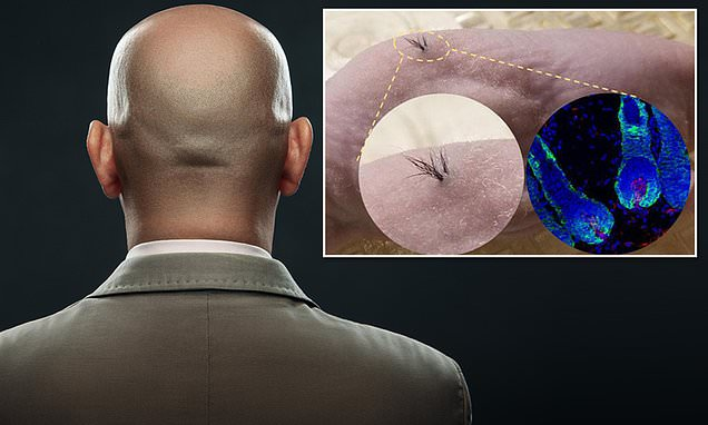 A cure for baldness is on the way using human stem cells