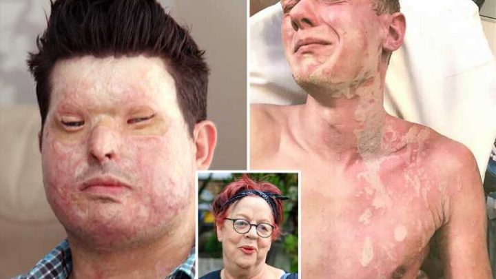 Acid attack victims blast 'vile' Jo Brand and demand 'disgusting' BBC apologises for 'inhumane' gag – The Sun