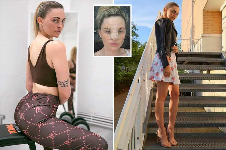 I lied to get a free nose job on the NHS, now I've been signed off work due to 'trolls' but spend my days at the gym and nail salon – The Sun