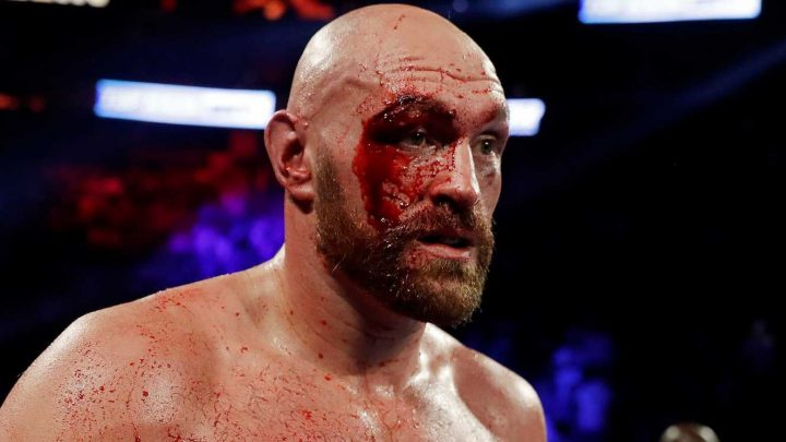 Tyson Fury to visit plastic surgeon and could have horror cut slit open AGAIN in bid to be ready for Deontay Wilder fight – The Sun