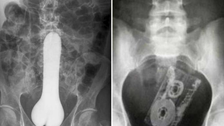 Doctors share tales of bizarre household objects surgically removed from patients' bottoms