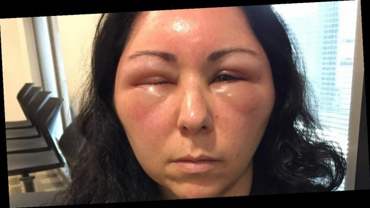 Woman 'couldn't open her eyes' as hair dye reaction felt like 'ants biting her'