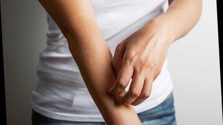 Skin rashes possible symptom of coronavirus, experts say