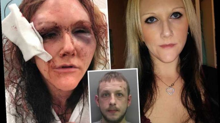 I thought I'd die when my ex smashed my head against a glass tank, beat & choked me – he left me looking like a monster