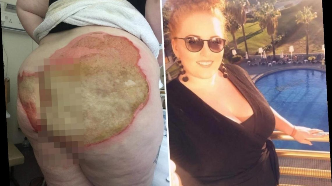 Woman, 27, suffers horrific burns on bum after falling on scalding radiator pipe in epileptic fit