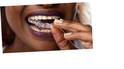 Invisalign: 7 things you should know before getting clear braces