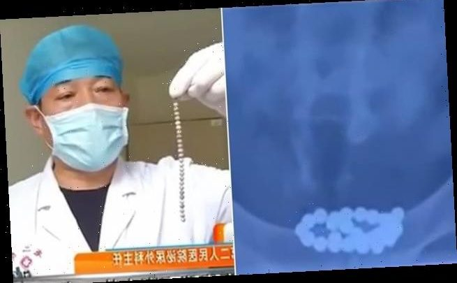 Chinese man has 29 magnetic beads stuck in his bladder