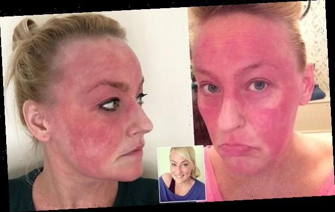 Mother with painful red eczema healed herself with a vegan diet