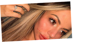 Holly Hagan bravely shows off her spots in make-up free snap as she opens up on beauty dysmorphia