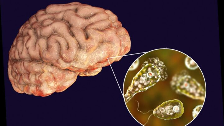What is the brain-eating amoeba?