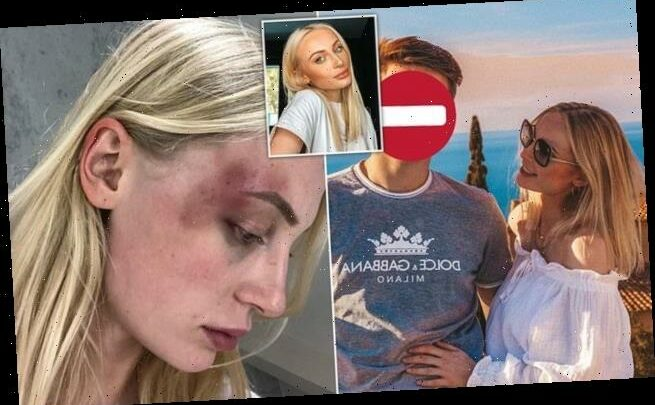 Belgian model shares shocking images of 'violent' abuse