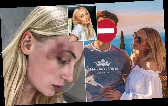 Belgian model shares shocking images of 'violent' abuse