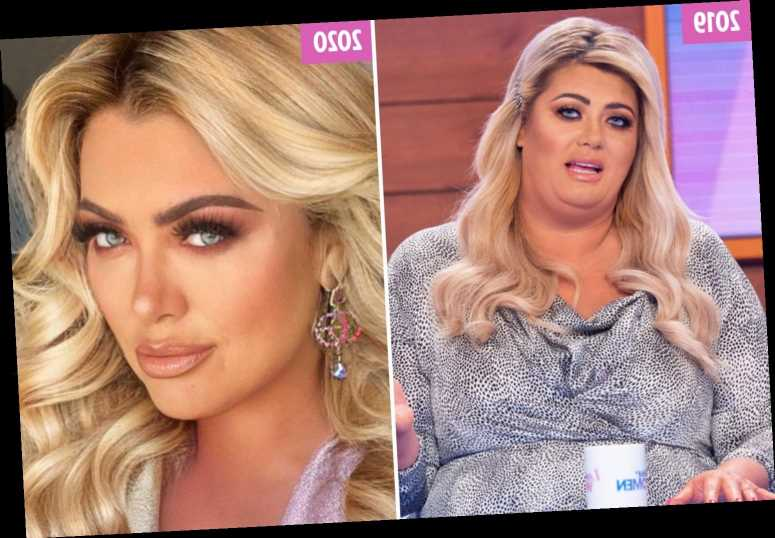 Gemma Collins' changing face after 3 stone weight loss and £8.3k worth of treatments