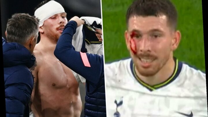 Tottenham ace Hojbjerg left with blood pouring down face after nasty clash – but 'warrior' refuses to come off injured