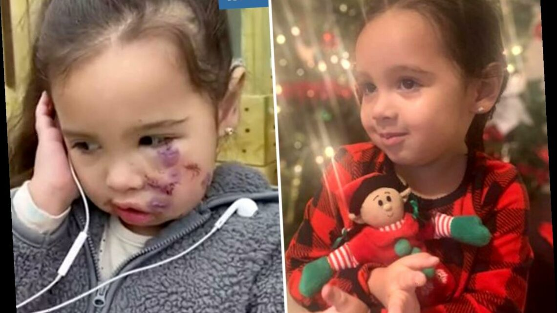 Girl, 3, tells parents 'I'm ugly' after a 'rag doll' attack by vicious pit bull left her with facial scars