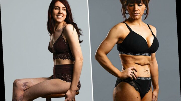 Our bodies aren't perfect but who cares? We meet two women who posed with their scars for an inspirational project