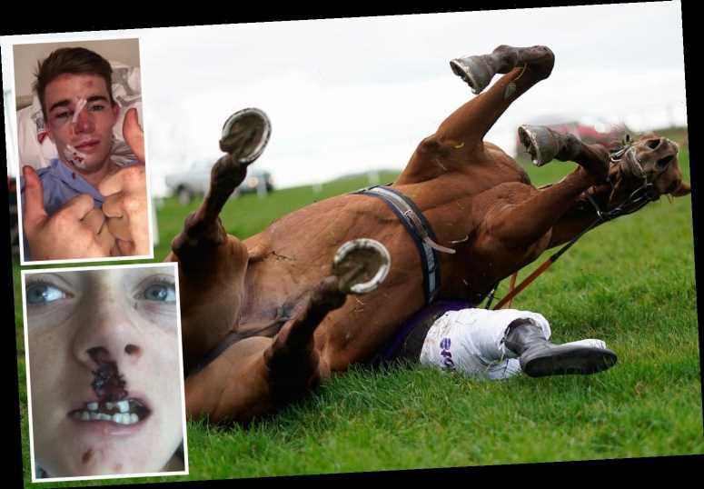 Racing's unluckiest injuries including the jockey who was run over by an ambulance and Hollie Doyle smashing her teeth