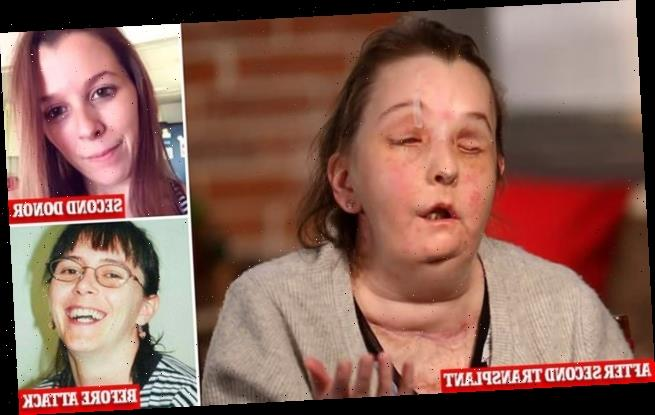 First American to have second face transplant shows off new face