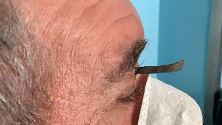 Man gets nail propelled into eyelid while mowing lawn