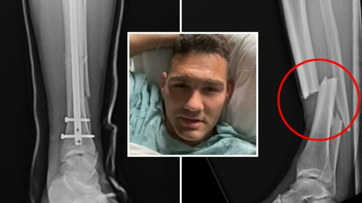 UFC star Chris Weidman shares horror X-ray pics of broken leg bone with rod inserted after undergoing successful surgery
