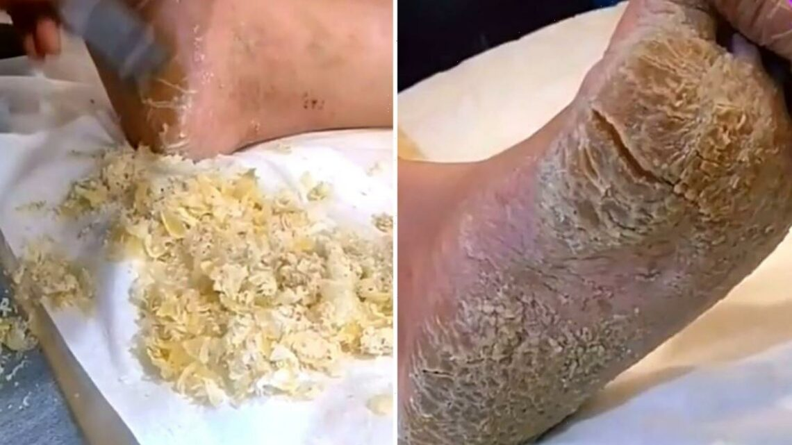 Stomach-churning moment beautician tackles MOUNTAIN of dry skin on client's feet – and it's likened to 'parmesan cheese'