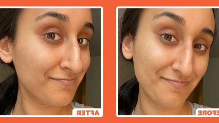 Dr. Dennis Gross Peel Pads Review: 'They Brightened My Pigmentation And Complexion'