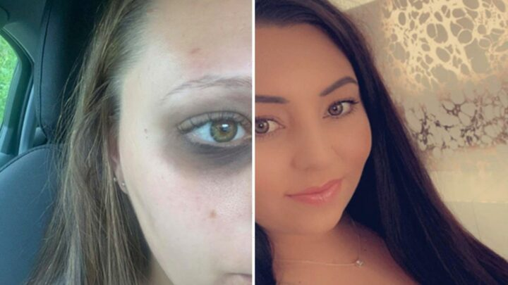 Estate agent, 22, left with black eye after stranger pounces and punches her in unprovoked attack