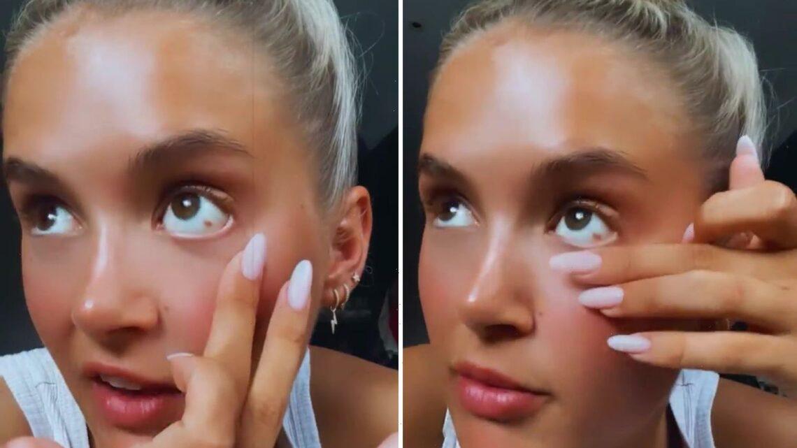Molly-Mae Hague horrified as she shows fans 'burst blood vessel' in her eye