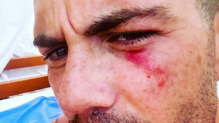 The Wanted's Max George shares bloodied selfie after diving accident which could have blinded him