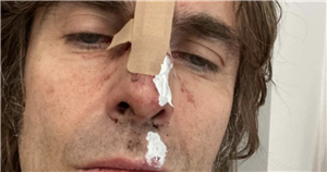 Liam Gallagher shares look at his injuries after 'falling out of a helicopter'