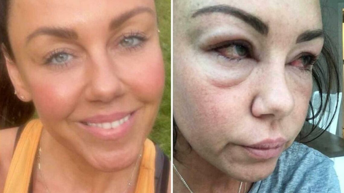 Michelle Heaton shares shocking snap of swollen bloodshot eyes taken just 20 weeks ago as she reflects on alcohol battle