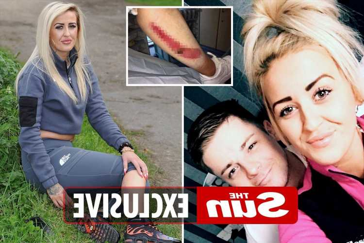 Thug who ran over girlfriend, 24, TWICE fracturing her pelvis and ribs walks FREE as she says he should 'rot in jail'
