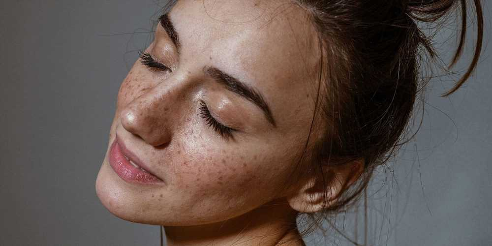 This Pore Treatment Toner Keeps Shoppers' Acne and Milia Away — and It's on Sale